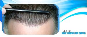 2000 grafts will cover frontal area