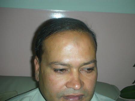 hair implant lahore photo