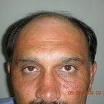Hair Transplantation South Africa