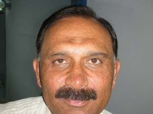 South Africa hair transplant photo