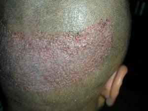 fue hair transplantation donor area