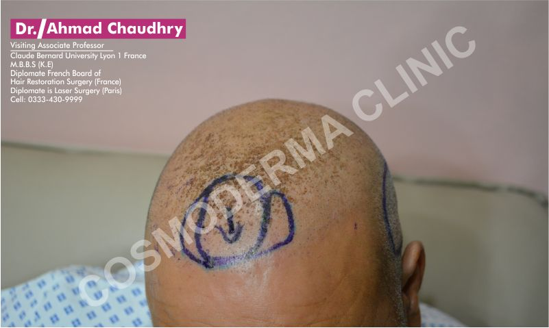 Dense packing frontal hairline