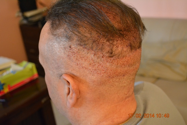 Fue hair transplant Lahore