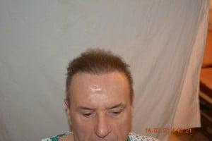 Pakistan hair transplantation