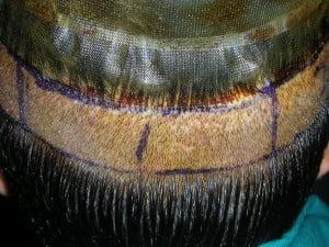 Norway Hair Transplant