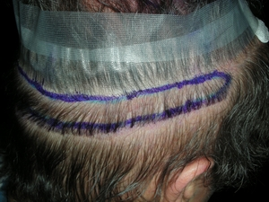 Hair transplantation Yanbu