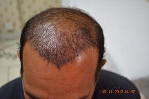 Hair transplant Dublin Ireland cost