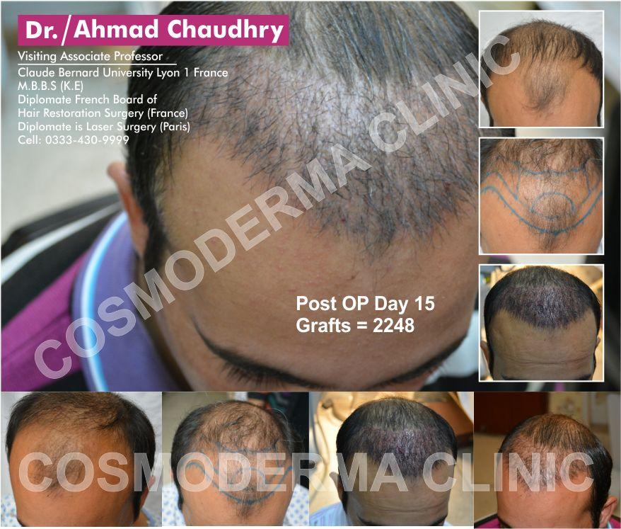Hair transplant in Alkhobar Saudi Arabia