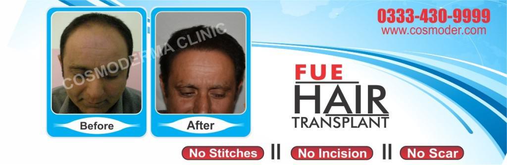 Hair Transplant in Pakistan