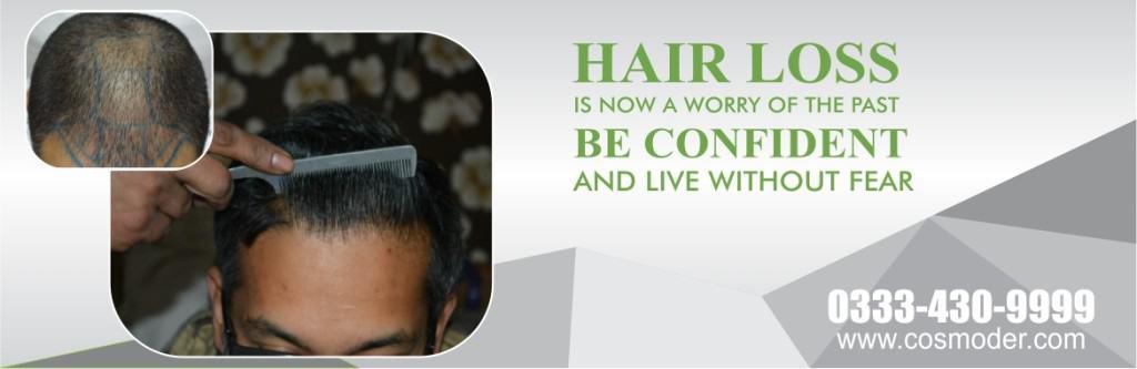 Fue Hair Transplant in Pakistan
